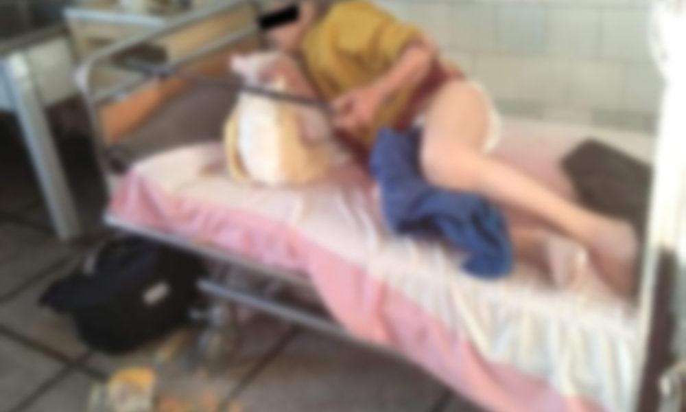 rezultatul tratamentului varicelor cu hirudoterapie